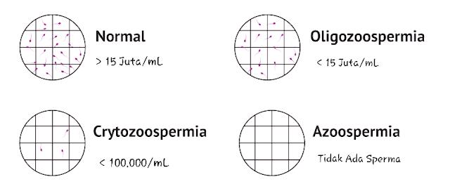 Normozoospermia > Oligozoospermia > Cryptozoospermia > Azoospermia