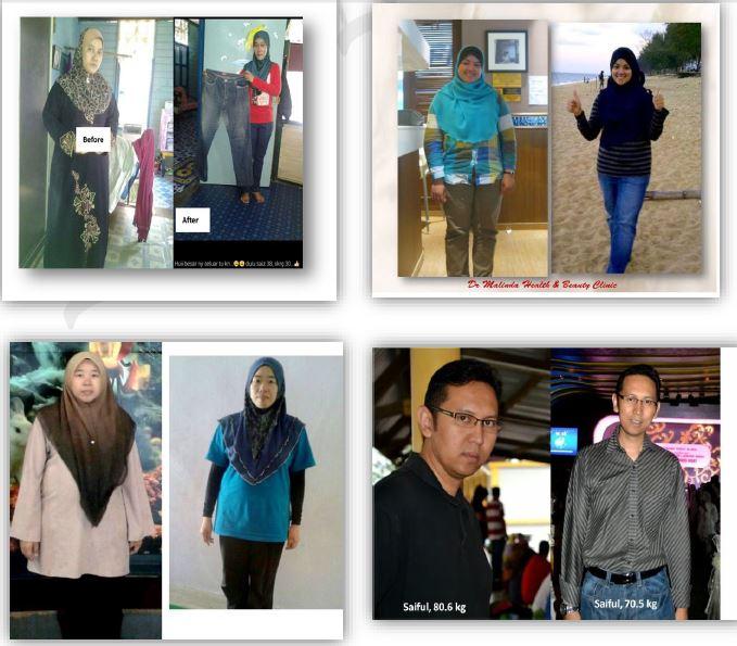 obesiti, program diet, nak kurus
