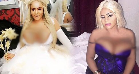 Cossy Ojiakor explains she has gone for a second surgery