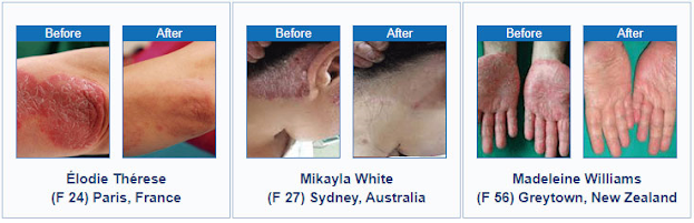 Psoriasis Treatments At Home - Results