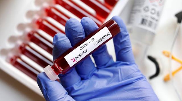 المهدية : تسجيل 56 إصابة جديدة بفيروس كورونا