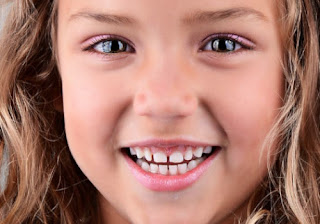 How to fix small Gap Between front Teeth