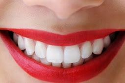 Jenis Makanan Yang Bisa Membuat Gigi Putih