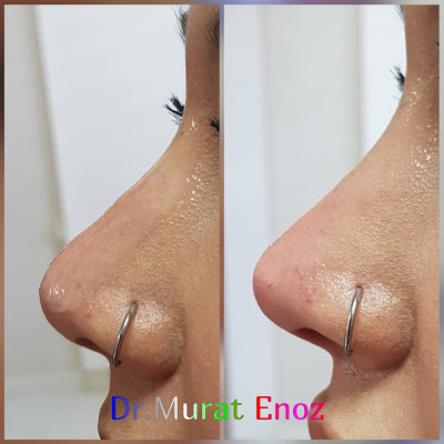 Non-Surgical Nose Job Cost in İstanbul, Turkey