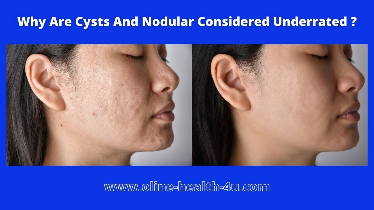Cysts and Nodular