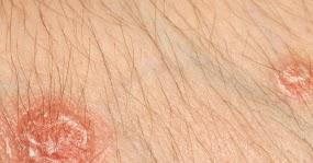 bitter sin alcohol y acido urico dieta para baixar acido urico alto dolor en la planta del pie por acido urico