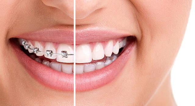 Caring for Dental Braces: Health Tip