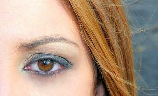 هل اصفرار العين خطير؟ ماهي أسبابه؟