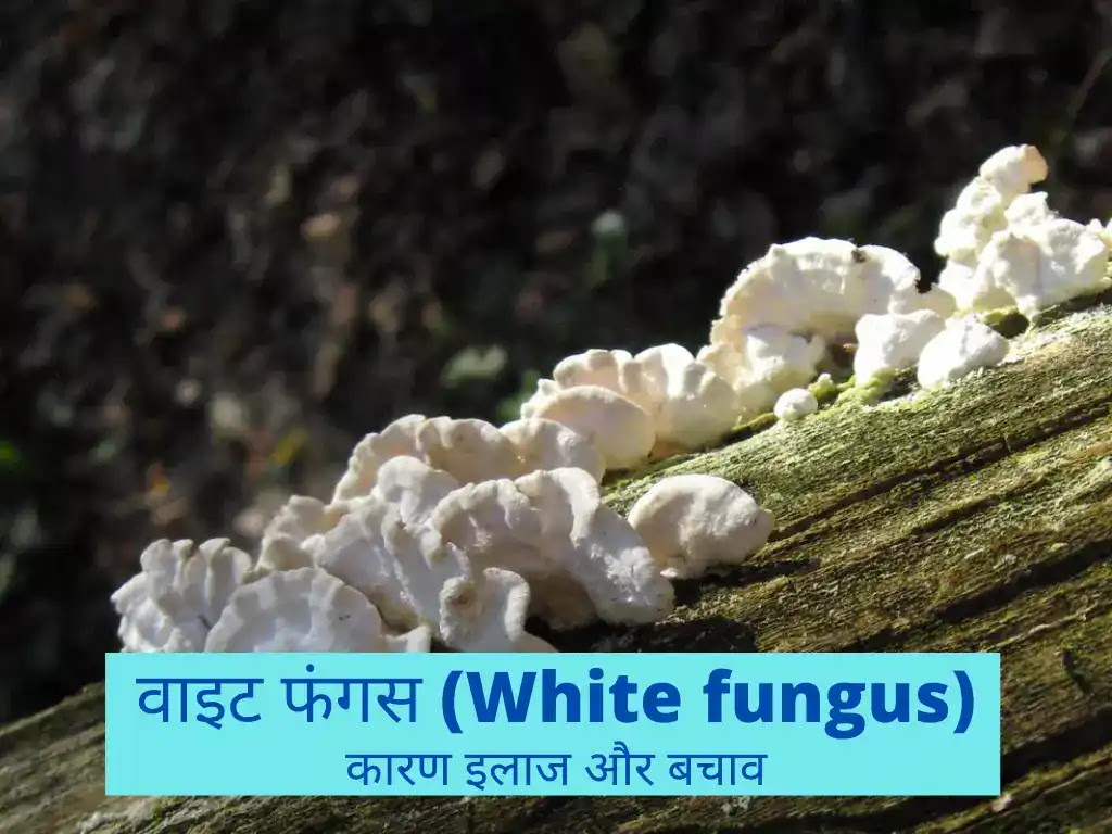 व्हाइट फंगस (White Fungus): कारण, लक्षण, इलाज, बचाव इत्यादि