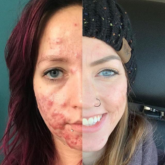 L'acné : Ce qu'il faut faire ou éviter pour la traiter