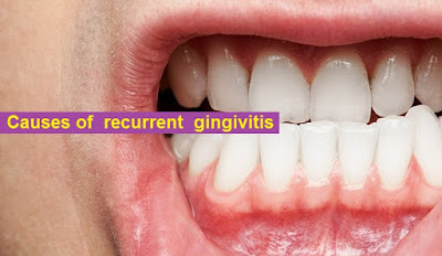 Causes of recurrent gingivitis