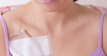 The Breast Cancer Chemotherapy Process