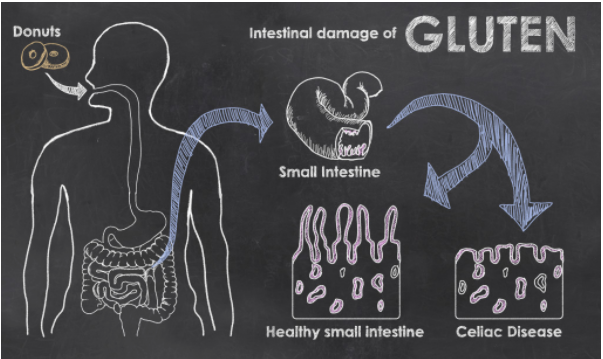 Cleanse your colon; heal your leaky gut