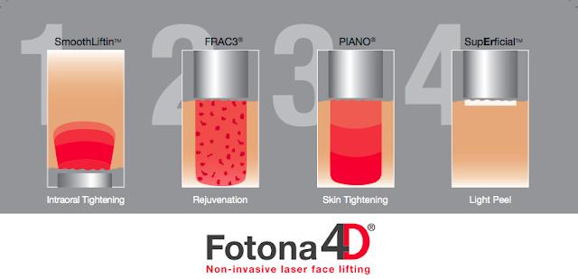 fotona 4d laser face lifting malaysia