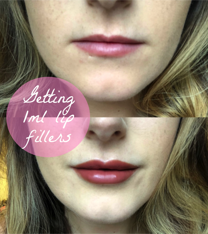 Getting 1ml lip fillers with Flawless Cosmetic