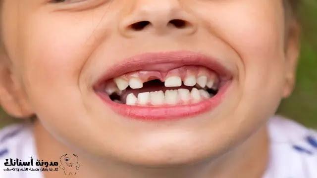 كيف تمنع وتعالج تسوس الأسنان لدى طفلك.