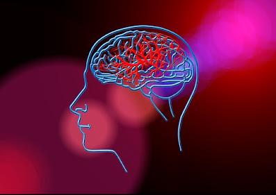 Stroke | Stroke Symptoms | Ischemic Stroke
