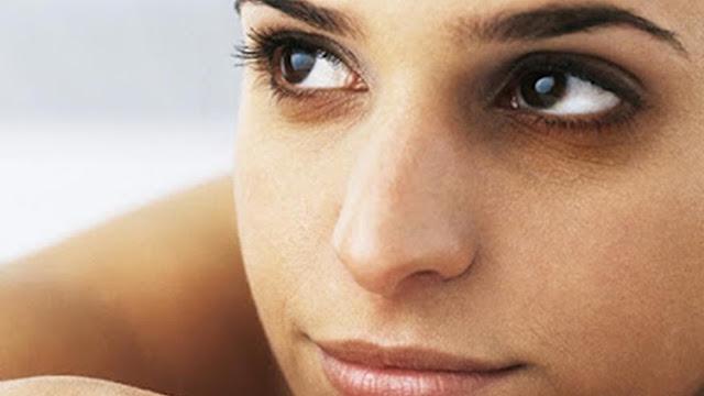 mujer con ojeras muy oscuras
