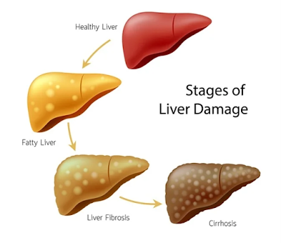 causes of hepatic failure complications