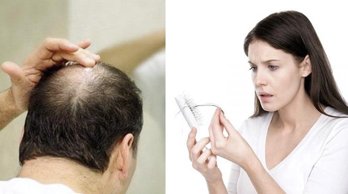 Mách bạn cách trị rụng tóc từ thiên nhiên hiệu quả nhất tại nhà