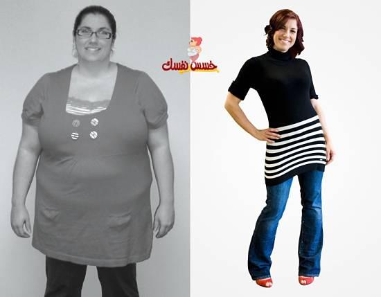 وصفه لفقدان الوزن وشد ترهلات الجلد