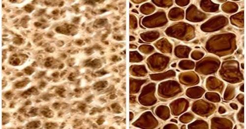 Penyebab, Pengobatan dan Pencegahan Osteoporosis   Medkes