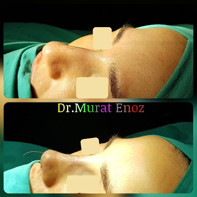 Rhinoplasty in Istanbul - Rhinoplasty Turkey - Rhinoplasty in Turkey – Rhinoplasty doctor in Istanbul – ENT doctor in Istanbul - Nose Job in Istanbul - Female Nose Aesthetic Surgery - Nose Jobs For Women - Nose Reshaping for Women - Best Rhinoplasty For Women Istanbul - Female Rhinoplasty Istanbul - Nose Job Surgery for Women - Women's Rhinoplasty - Nose Aesthetic Surgery For Women - Female Rhinoplasty Surgery in Istanbul - Female Rhinoplasty Surgery in Turkey