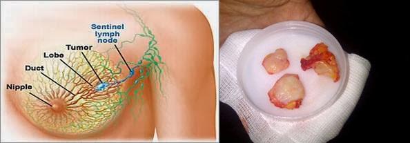 Obat Tumor Payudara, Pengangkatan Tumor Payudara Tanpa Operasi Terbukti Ampuh Dengan Cara Alami