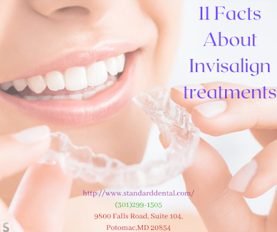 11 Facts about Invisalign Treatments