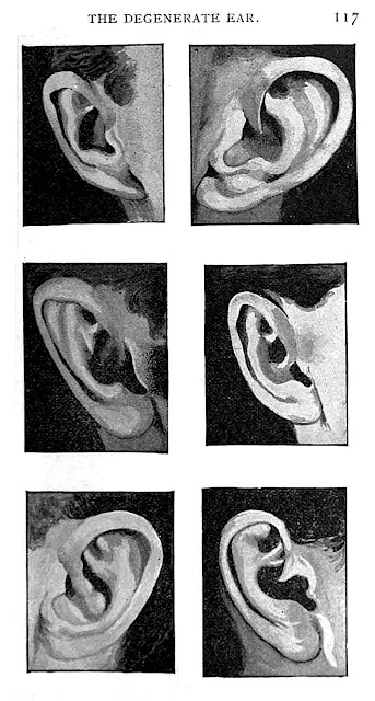 Phrenology degenerate ears illustration 1897