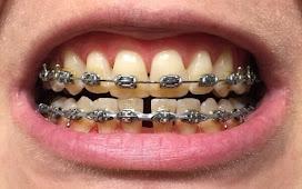 Răng bị vàng khi niềng? Cách khắc phục vàng răng khi niềng