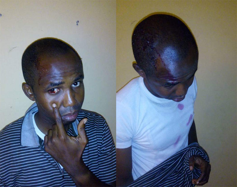 Abuja policemen beat up driver, steal his money and wristwatch