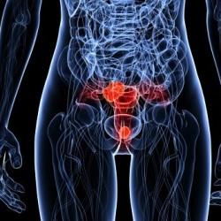 A relação entre o câncer cervical e o HPV, a vacina é recomendável