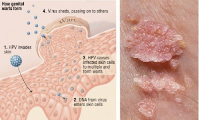 Berapa Lama Virus HPV Kutil Kelamin Bisa Hilang Dari Tubuh Anda