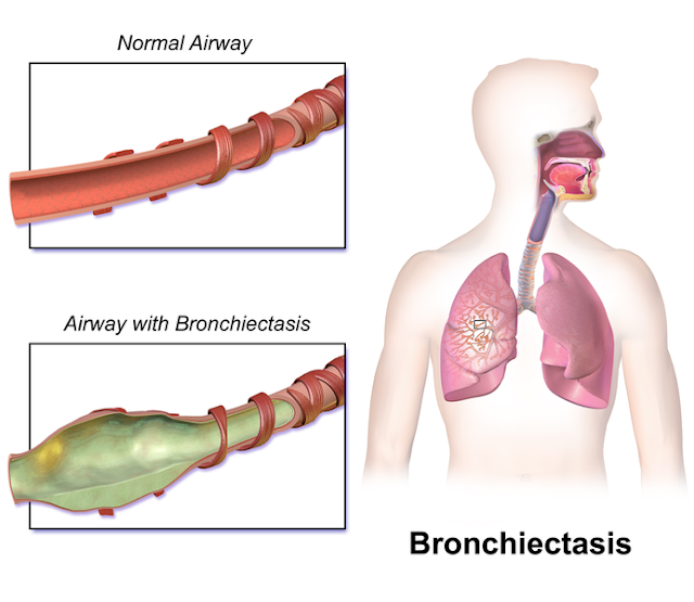 ब्रोन्किएक्टैसिस / श्वसनीविस्फार [ Bronchiectasis ] की समस्या क्या है ? क्या है कारण , लक्षण , रोग की पहचान , एव रोग के परिणाम ? किस प्रकार इलाज कर सकते है ? What is the problem of bronchiectasis / bronchiectasis? What is the cause, symptoms, disease detection, and the consequences of the disease? How can you cure?