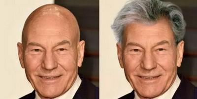 Veja como ficam as celebridades carecas com cabelo