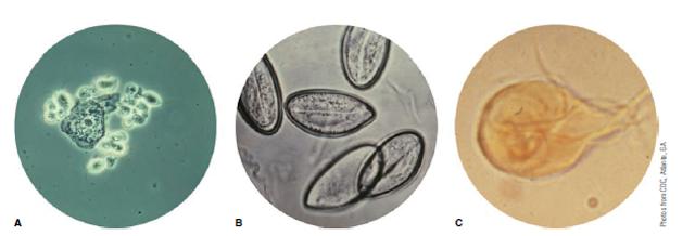 Contoh dari tiga parasit umum manusia (tidak diperlihatkan dalam skala): (A) tampilan pembesaran rendah dari sel epitel skuamosa tanpa noda dan Trichomonas vaginalis flagelata, dan tampilan perbesaran tinggi dari (B) telur cacing kremi dan (C) Giardia trophozoite tanpa noda