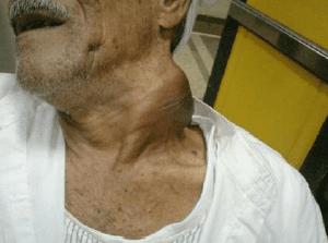 swelling-cancer-larynx