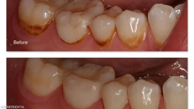 بقع بنية على الأسنان. هل هناك طريقة للتخلص من ذلك؟
