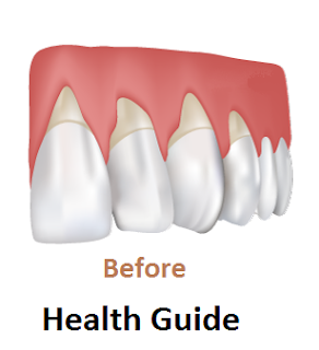 Tips for Health Gums and Teeth