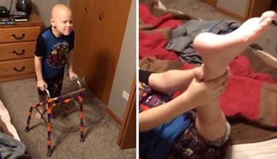 Lutut bocah diganti kaki usai diserang kanker tulang