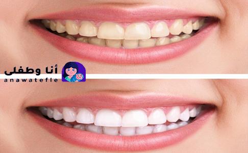 خلطة تبييض الاسنان