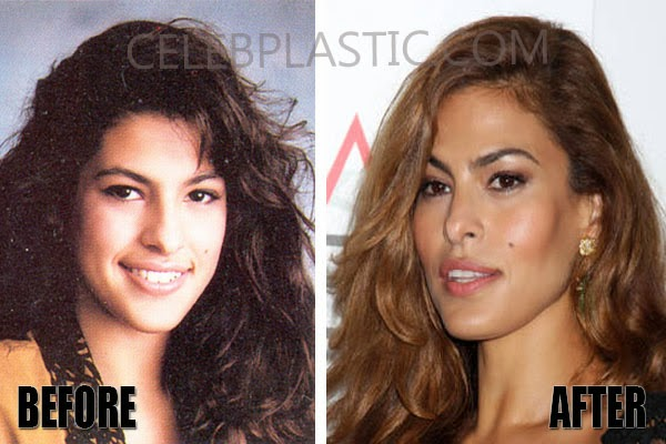 Eva Mendes Plastic Surgery Nose Job, Breast Implants, Botox Injections Before and After (Star plastic surgery)