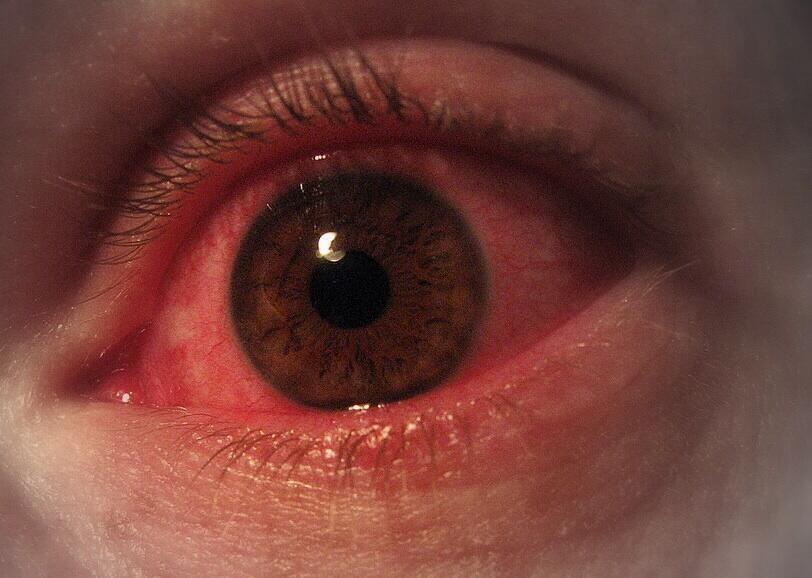enfermedades causadas por rayos uv