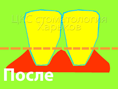 Схема образования черных треугольников
