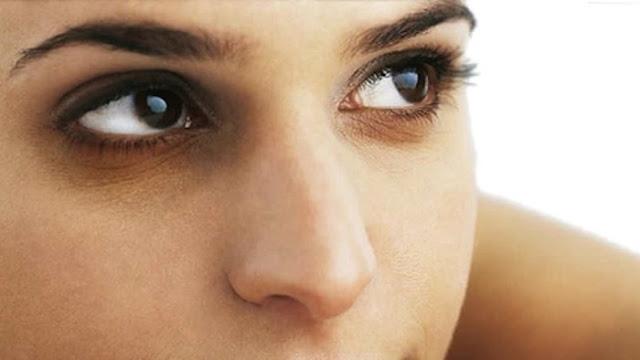 göz-altı-morluklarının-nedenleri