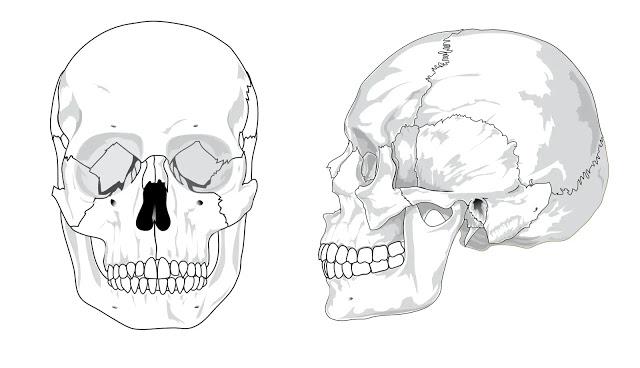 Figure 1. La osteoporosis - sybcodex.com