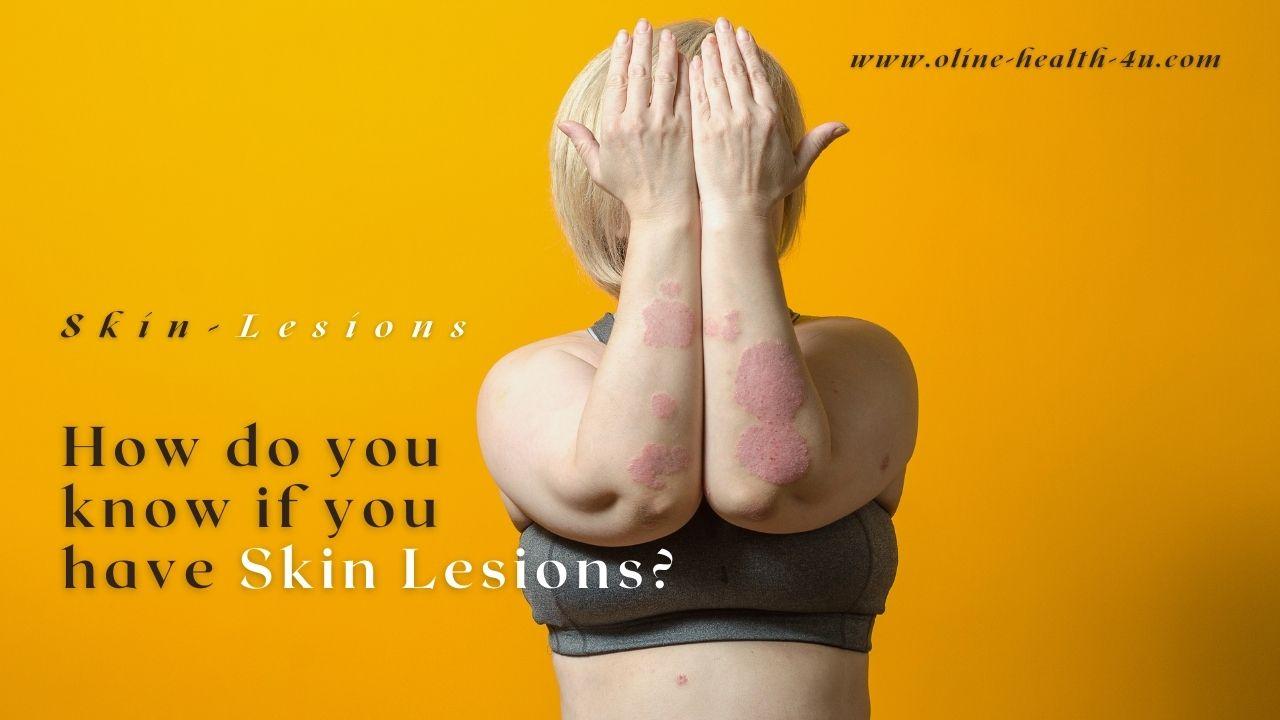 skin-lesion-symptoms-causes-types