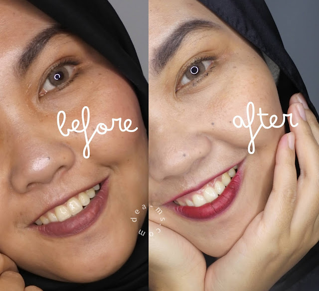 After dan Before Menggunakan Westcare All In One Brightening Face Wash & Westcare Glowing Moist Cloud Creme
