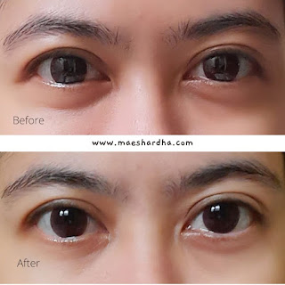 before after pemakaian n'pure marigold eye serum